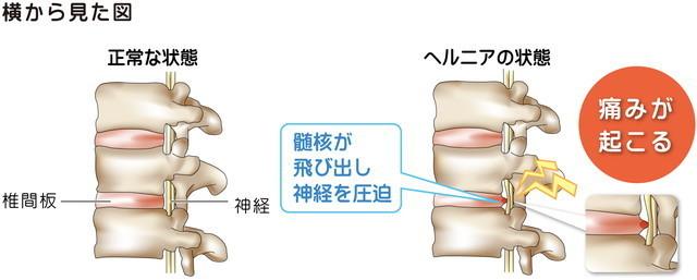 頚椎の正常の時と異常の時のイラスト